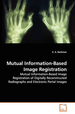 Mutual Information-Based Image Registration