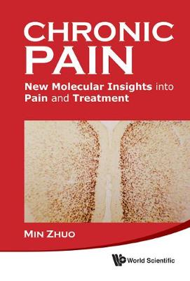 Chronic Pain: New Molecular Insights Into Pain And Treatment